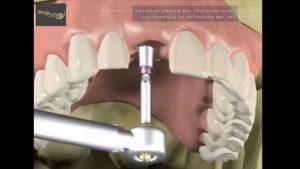Cómo se hace una prótesis sobre implante