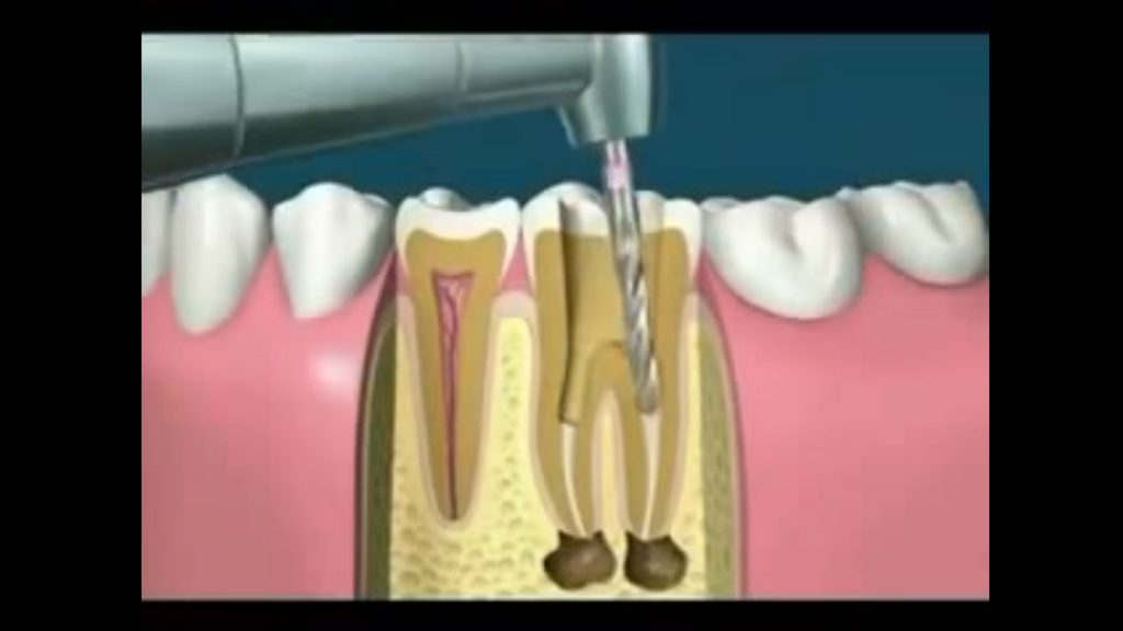 Video de endodoncia
